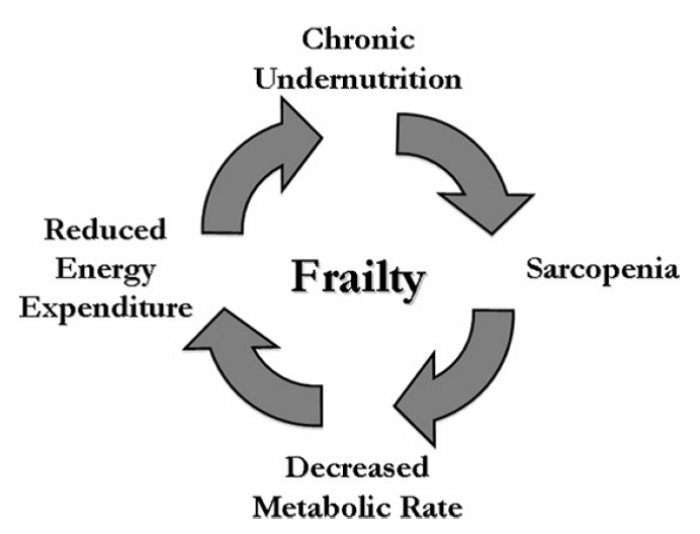 Syndrome of Frailty figure: sarcopenia, malnutrition, and reduced energy expenditure